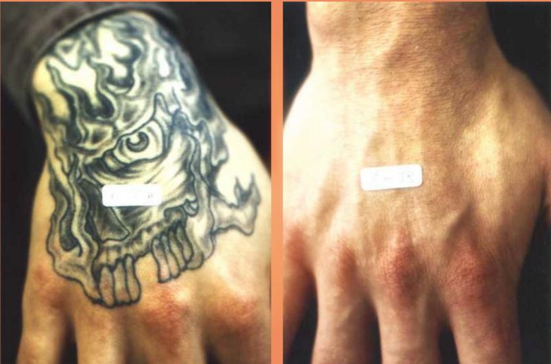 TattooStar Effect xóa xăm hiệu quả và không gây thương tổn da